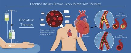 Heavy Metal Treatment Chelation Therapy